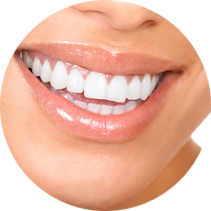 Teeth Whitening for a Whiter Smile